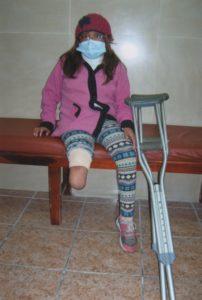 Maria Gallardo ohne Prothese_kl