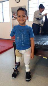 1705 Marco mit Beinprothese